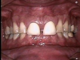 smile gallery advanced dental concepts