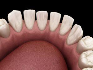 Excessive Spacing between teeth. Dental 3D illustration concept