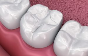 Dental fissure fillings, Medically accurate 3D illustration