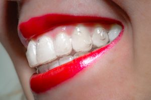 A woman's smiling mouth with red lips wearing invisible orthodontic aligners, side view