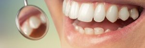 Odontology periodontal attractive teenager beautiful girl bleaching therapy candid person caries